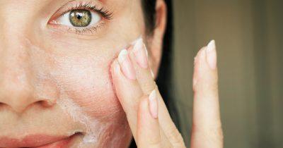 Ácido salicílico: todas las propiedades para la piel